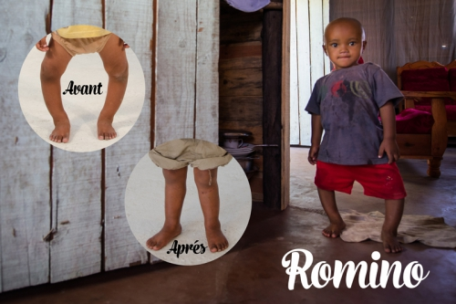 ROMINO_BEFORE_AND_AFTER_PS_JC001_FR_LO[1].jpg